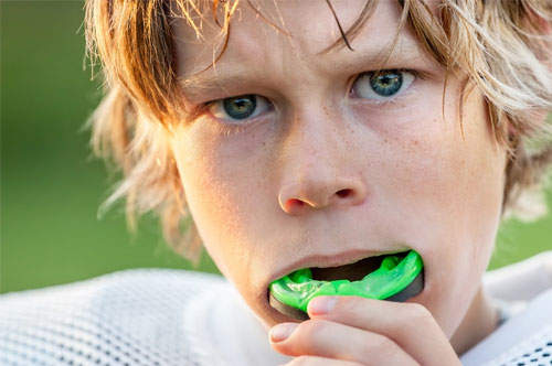 Save Your Smile, Wear An Athletic Mouthguard