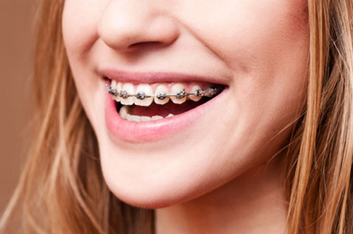 Straight Teeth Can Be Life-Changing (video)